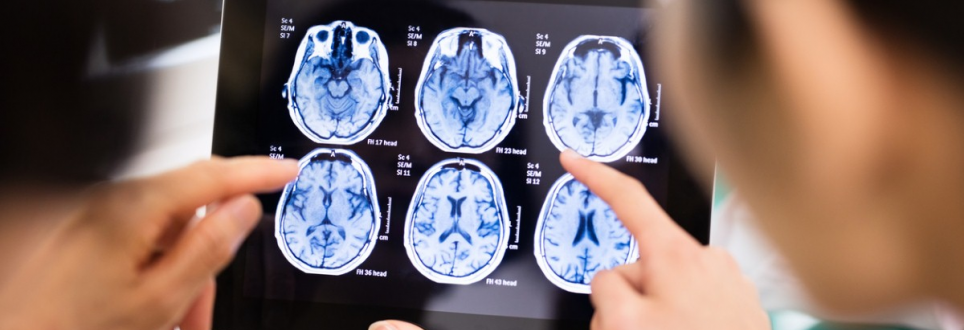Alzheimer's patients' memories boosted with magnet zapping