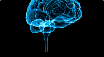 Memory problems 'lead to stroke'