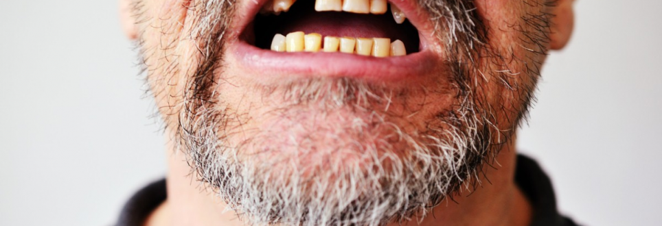 Tooth loss could be warning sign for early death