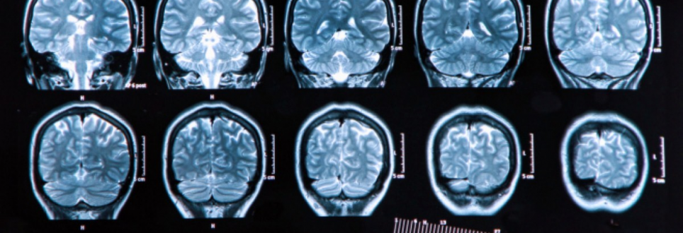 US and Chinese researchers target potential neurodegenerative drug