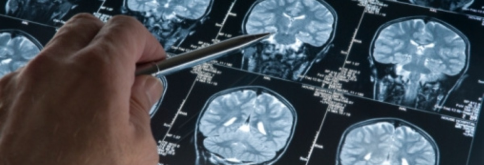 Can imaging help identify Alzheimer's disease in Parkinson's patients?