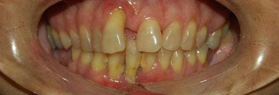 Why is gum disease more common with age?