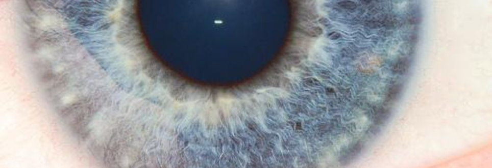 Cholesterol-busting drugs could help prevent blindness