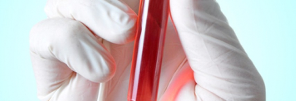 Scientists find way to identify age-related conditions using blood tests